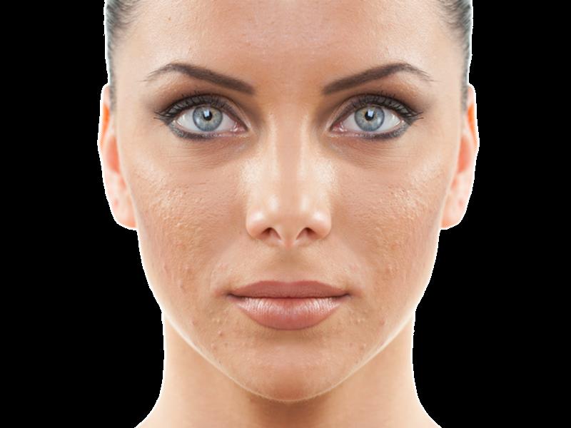 grasa y acné